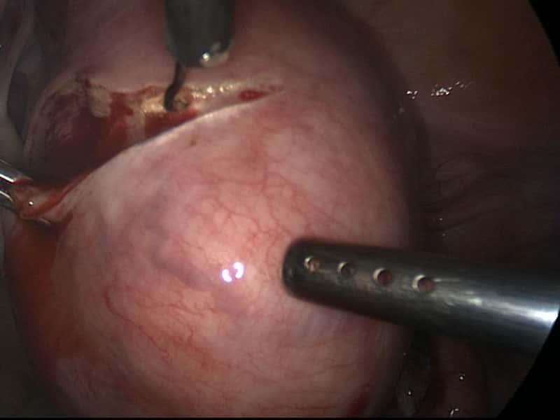 sangue dalla vagina
